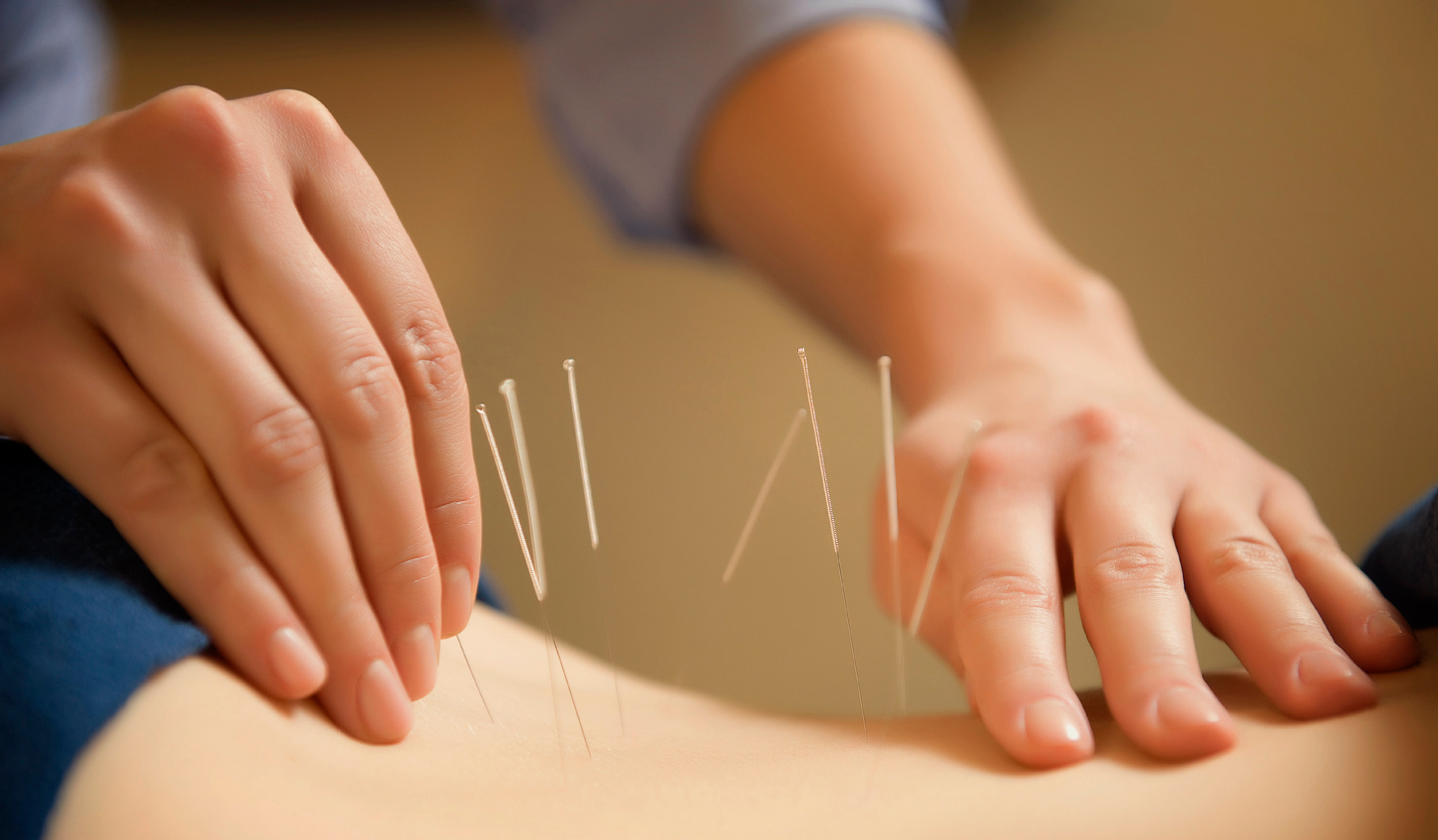 an analysis of the benefits and dangers of acupuncture a type of alternative medicine Acupuncture for alzheimer's the mechanism for acupuncture's putative effects in ad treatment has acupuncture alternative medicine arthritis ayurveda bias.