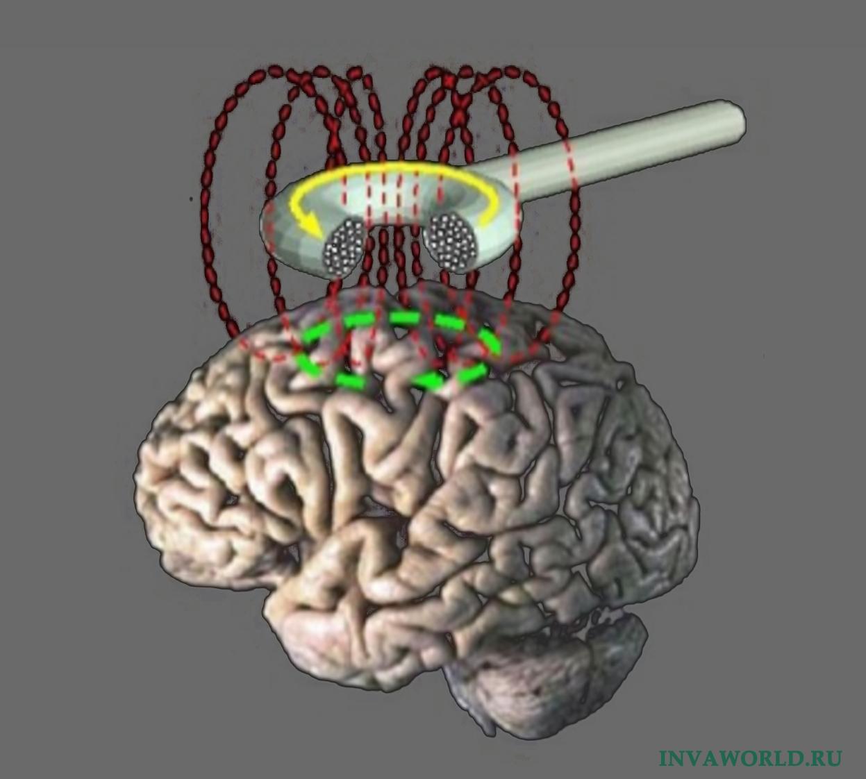 Восстановление речи после инсульта с помощью магнитотерапии