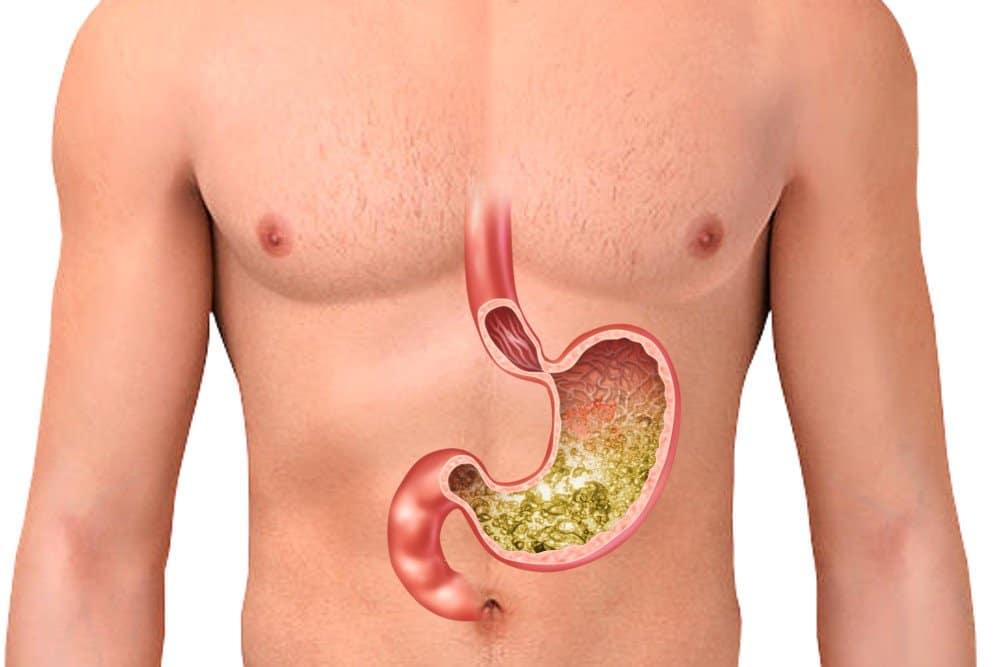 Возможно, врач порекомендует дополнительно принимать пищевые добавки для улучшения переваривания