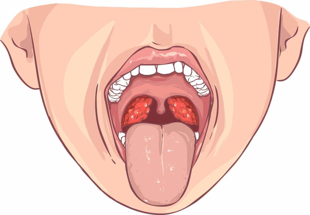 Практика показывает, что люди, болеющие хронической ангиной, после удаления миндалин забывают об этом недуге