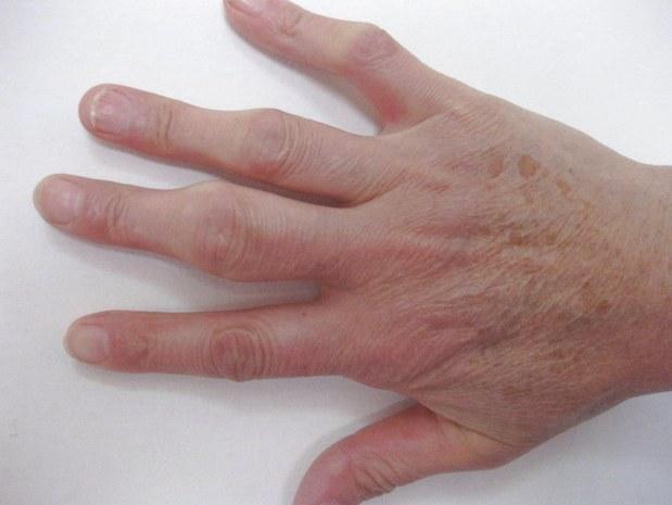 Если болят кисти рук: причины и лечение недуга