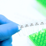 Надо или нет сдавать тест ПЦР перед вакцинацией